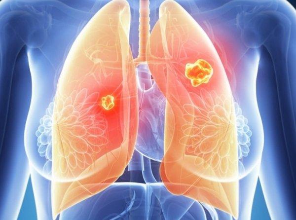 В США разработали способ диагностировать рак легких на ранней стадии