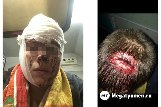 Пьяная семейная пара при ребенке зверски избила тюменского таксиста