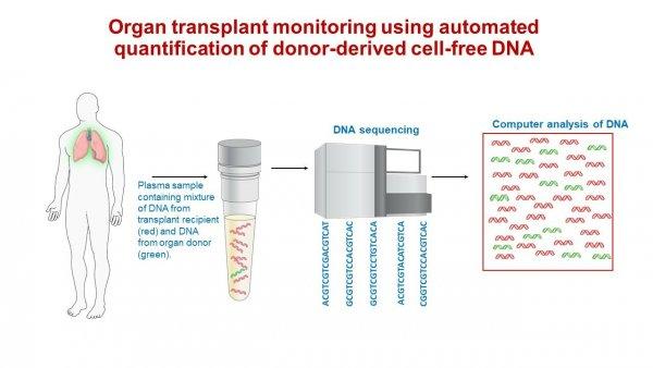 Анализ крови поможет выявлять отторжение тканей после трансплантации
